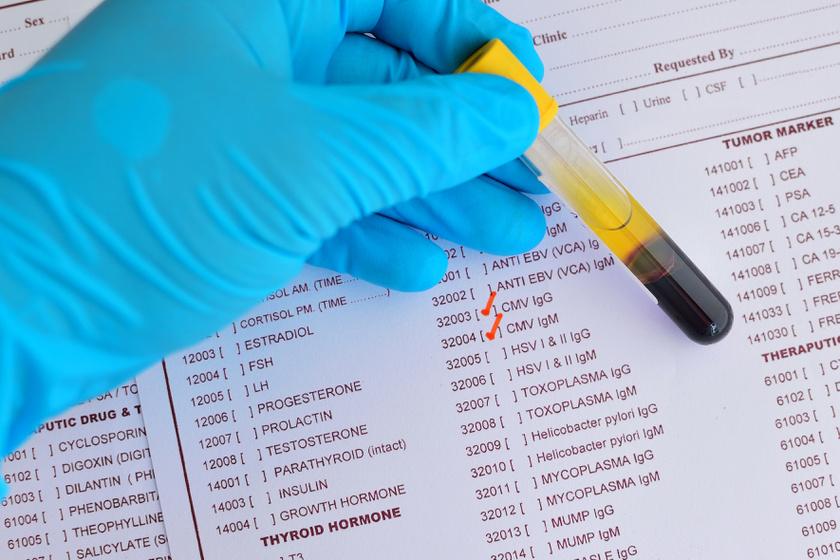 hogyan lehet eltávolítani a HPV-t a szervezetből paraziták gif