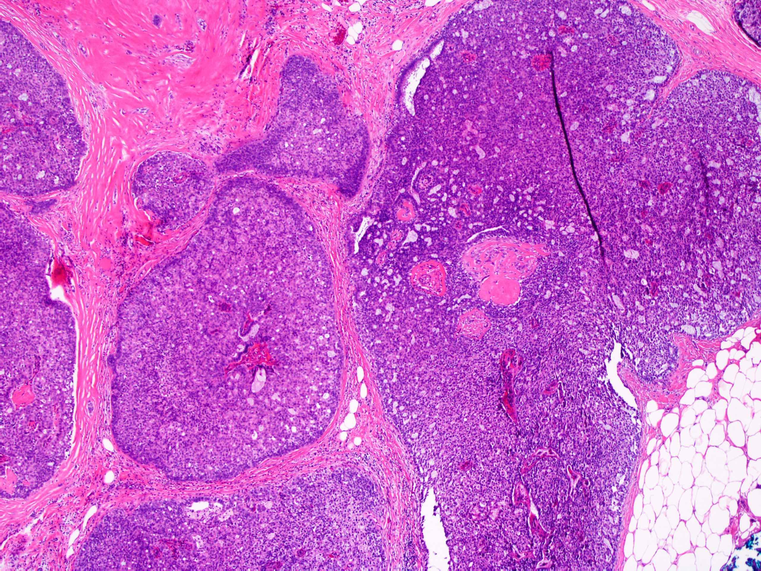 atipikus ductalis papilloma genitális herpesz papilloma vírus