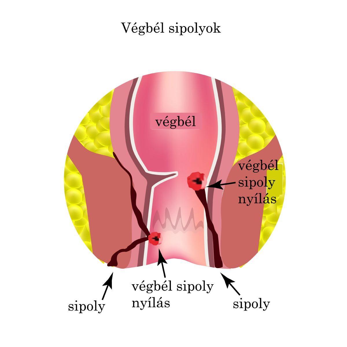 A vastagbélrák tünetei és okai
