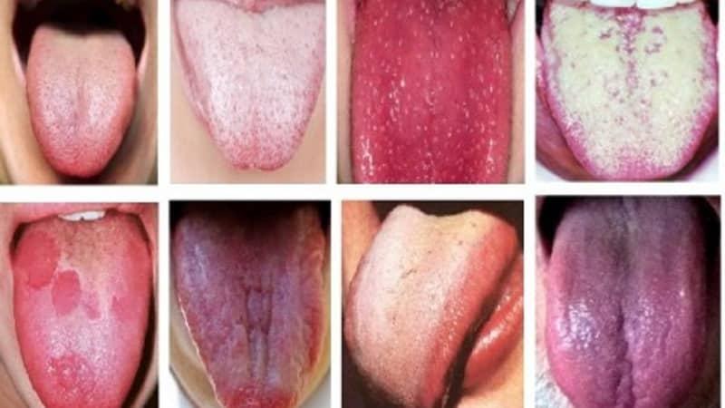 papillómák a nyelv gyökerénél hogyan lehet a papillómákat távolról kezelni