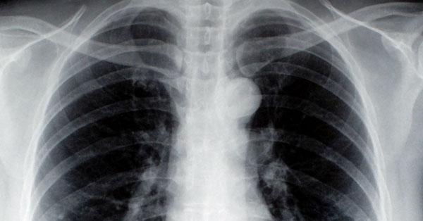 operálható tüdőrák