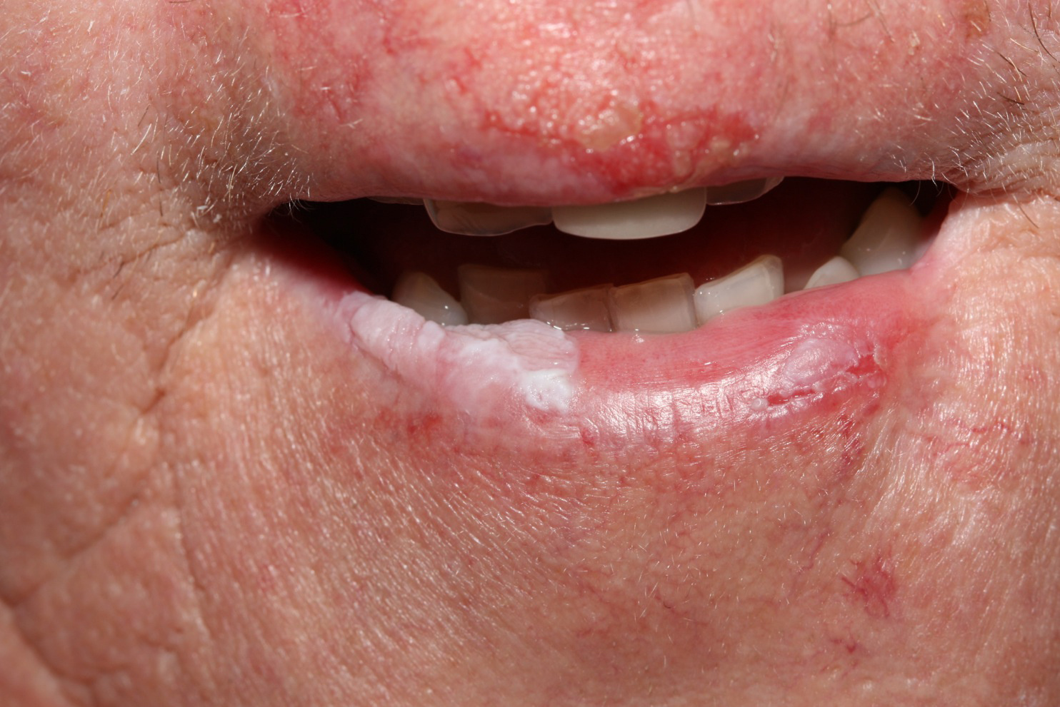 A humán papillomavírus és a szájüregi daganatok | notafa.hu