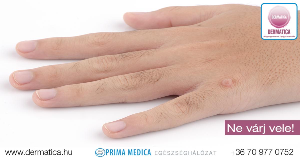 emberi papillomavírus szemölcsök a kezét helmint paraziták kezelése