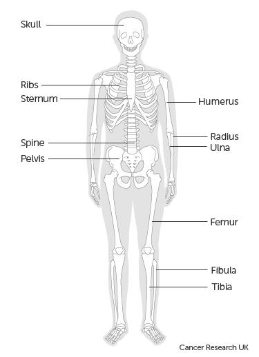 metasztatikus rákos csont túlélési arány
