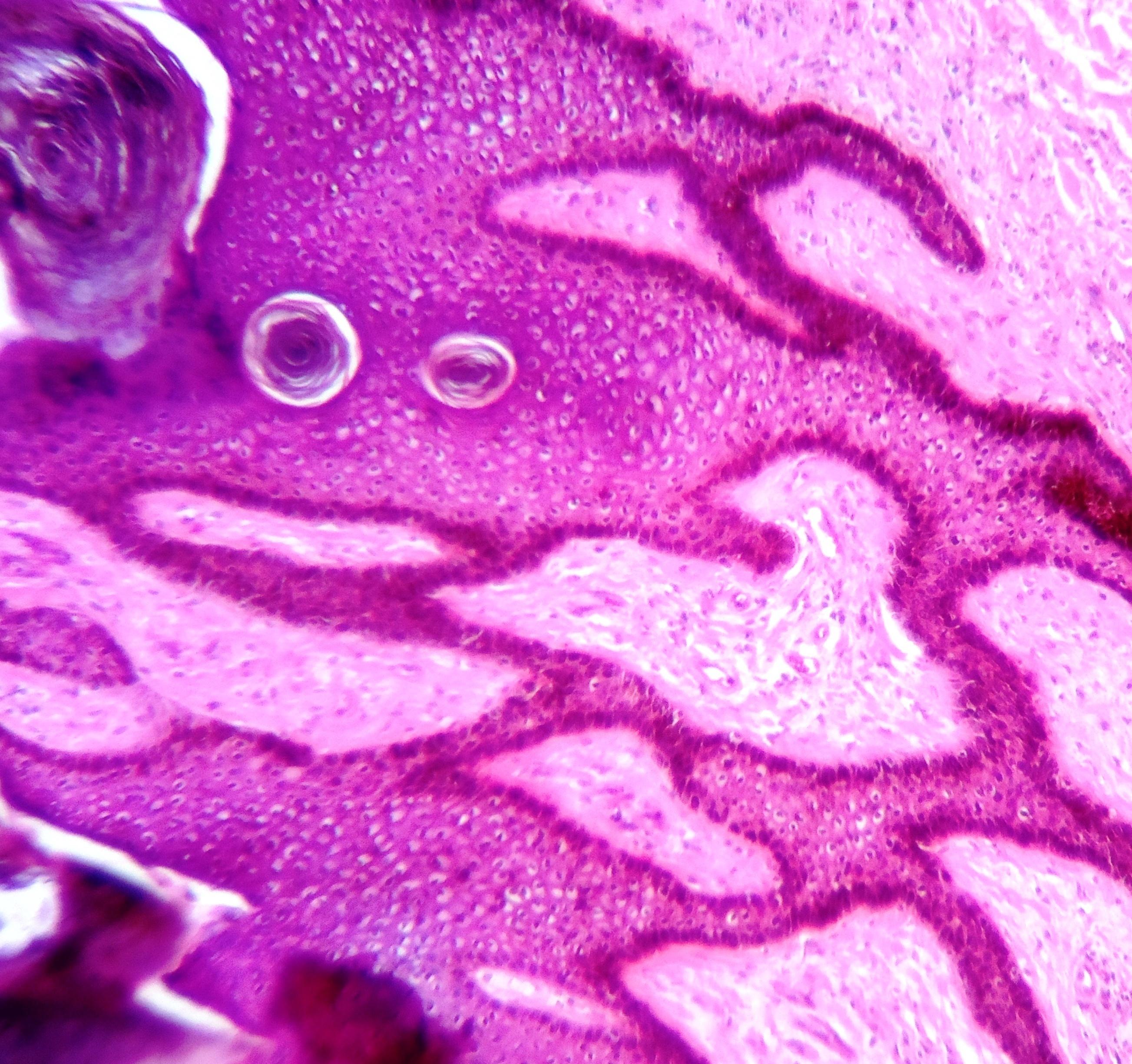 kis condyloma a karon hím HPV rákok