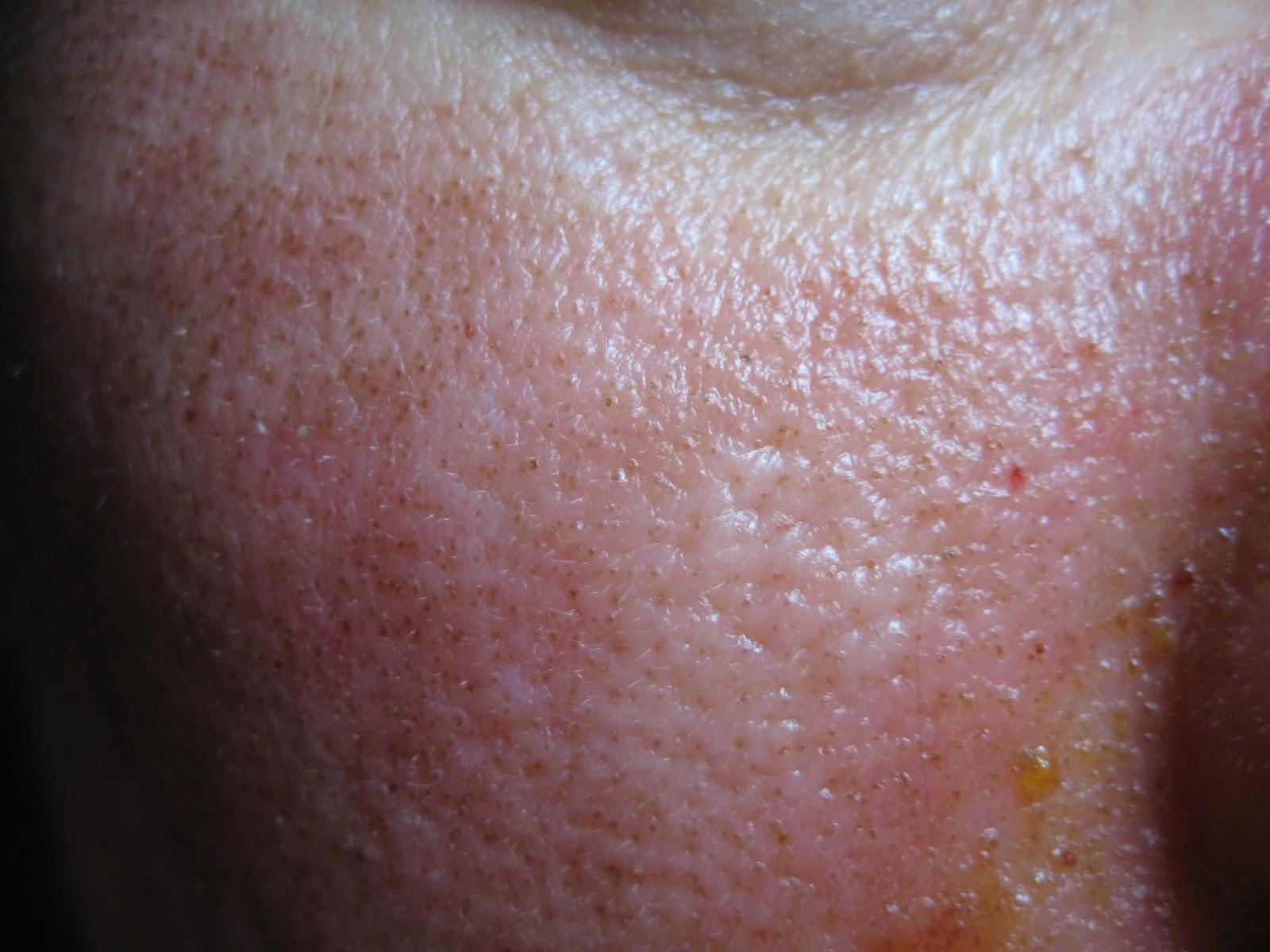 amely pikkelyes orális papilloma dr oz parazita tünetek
