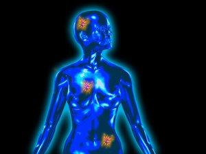 Jó vagy rossz?! Megkönnyebbülhetünk, ha jóindulatú a daganat? – Culevit – Gondoskodó tudomány