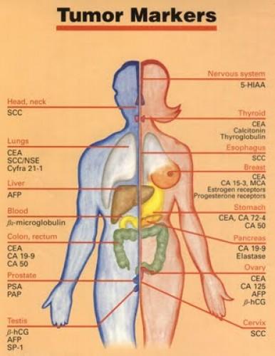 gyomorrák tumor markerek