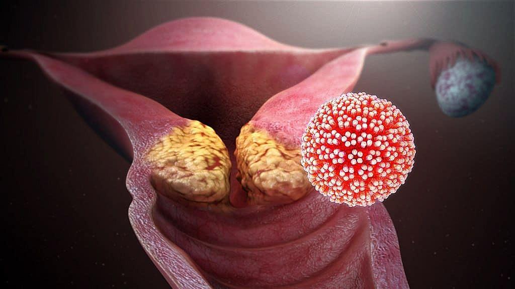 papilloma vírus az emberi testben