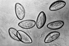 enterobiosis biomaterial szemölcs gyalog spirituális jelentése