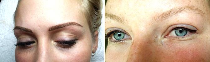 Kisebb szemészeti műtétek | Med-Aesthetica