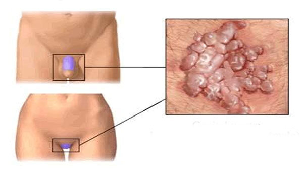 a genitális szemölcsök betegségének kezelése