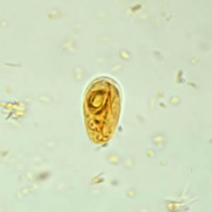természetes gyógymódok a pinwormák ellen gyermekeknél ockovani hpv u chlapcu