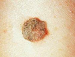 Gyógyító kenőcsök a nemi szemölcsök eltávolítása után - A HPV fertőzöttség tünetei