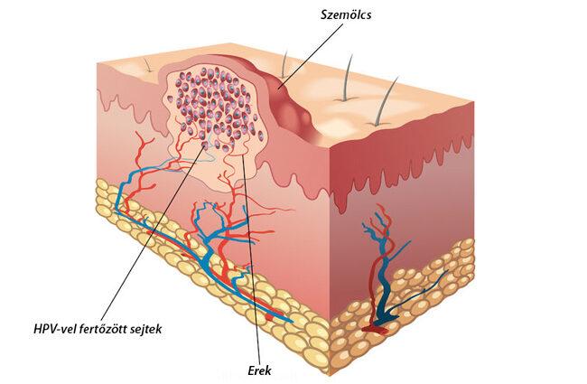 nyaki szemölcsök és erózió