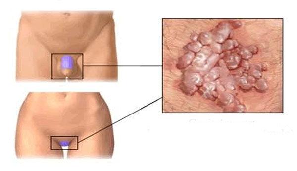 a papilloma és a condyloma eltávolítása