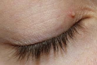 pinworm fertőzés tünetei