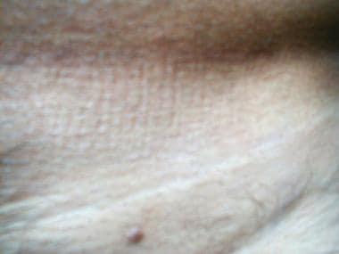 tojás olaj nélkül enterobiosis a tulában