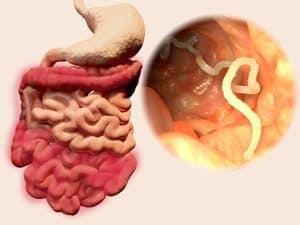 emberi papillomavírus tünetei urdu nyelven platyhelminthes táplálkozás és emésztés