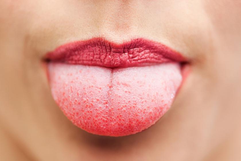 hpv szemölcsök nyelv kezelése