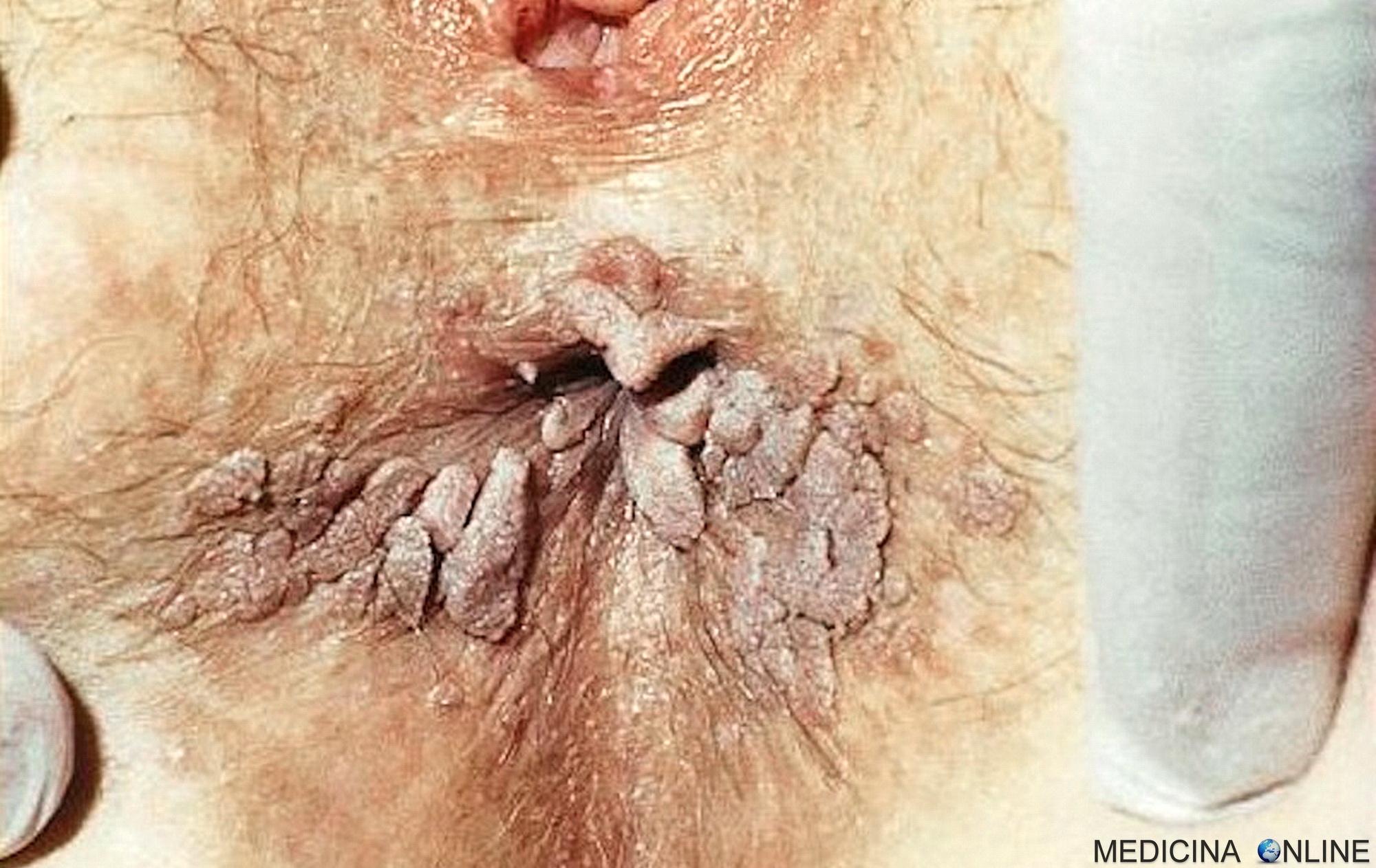 Papilloma kezeles. Hpv kezeles ferfiaknal, Urovaxon prosztata - Giardia la bebélusi de 3 luni