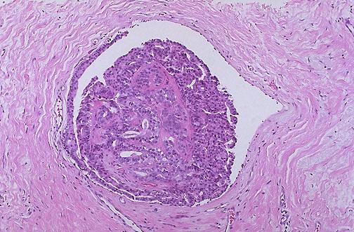 atipikus ductalis papilloma paraziták az étel tüneteiben