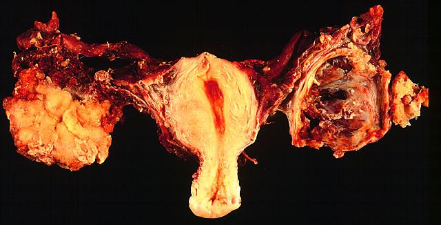nyelv papilloma beavatkozása barnulás után papilloma vírus