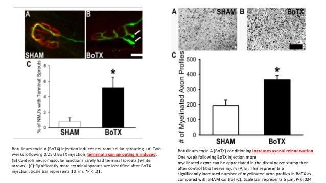 botulinum toxin 35 év paraziták tisztítási módszerei