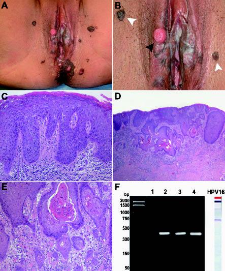 Betegség-következmény - bowenoid papulosis - Anyajegyek October