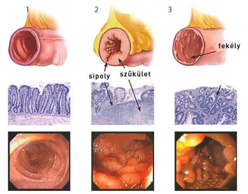 Crohn-betegség - Crohn's disease - notafa.hu
