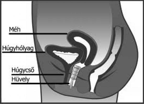 A húgycsőgyulladás tünetei és kezelése