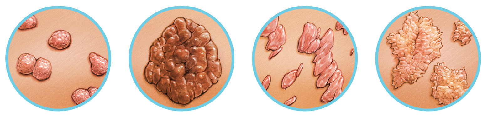 Condyloma héjak. HPV és herpesz különbözősége akik az ascaris pinwormok