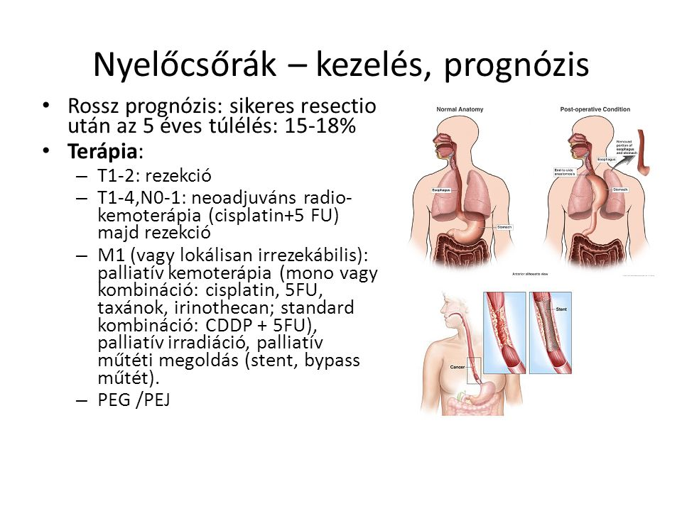 nyelőcső daganatok, nyelőcsőrák tünetei kivizsgálása