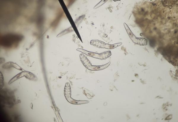 demodex parazita kezelés papilloma nyakon kezelese