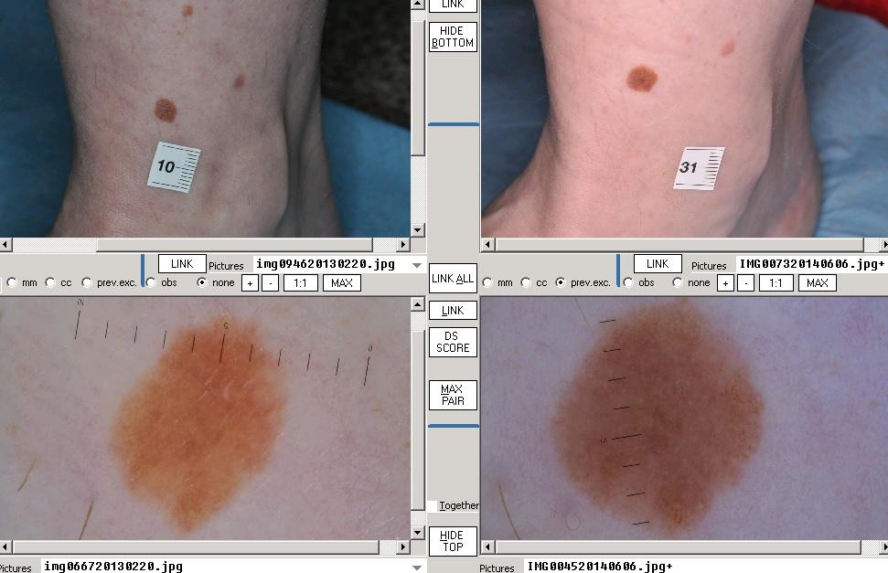 bőrrák elemzése