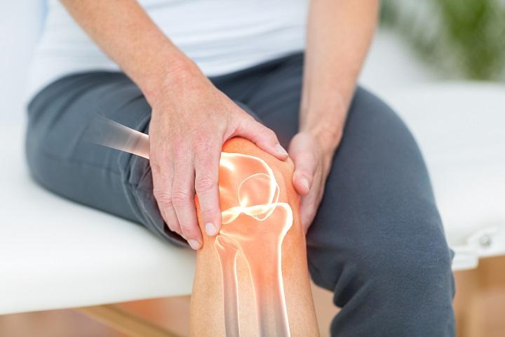erős rheumatoid arthritis