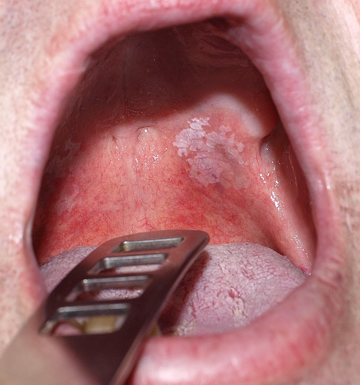 Belső szemölcs a szájban (jelige: csillag)