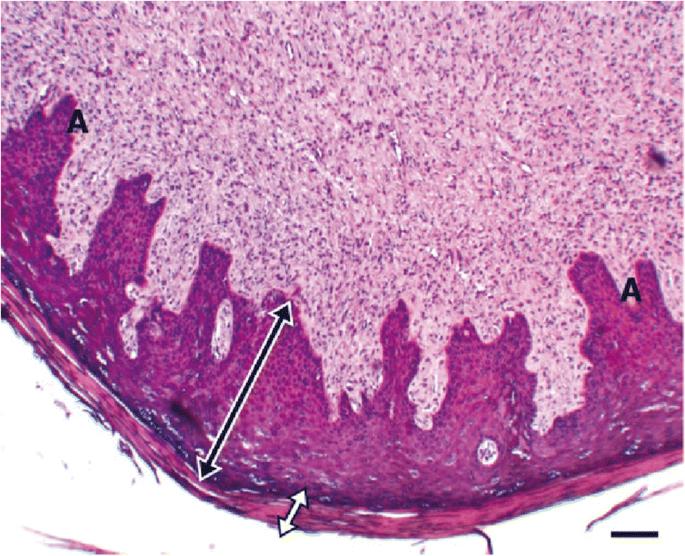 hyperkeratosis pikkelyes papilloma