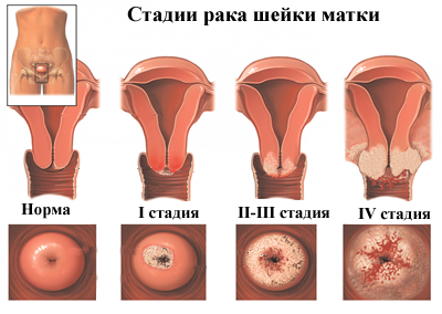nyaki rák kialakulása