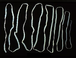 galandféreg egészségügyi ellátás a gyermek testének megtisztítása a parazitáktól