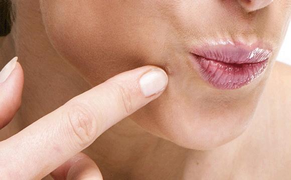 a bőr mikroszkopikus parazitái papilloma colli definíció