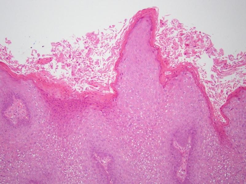 hogyan kell lemosni a condylomával hpv nincs szemölcs tünete