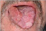 hpv növekedés a szájban féreg az emberi paraziták számára