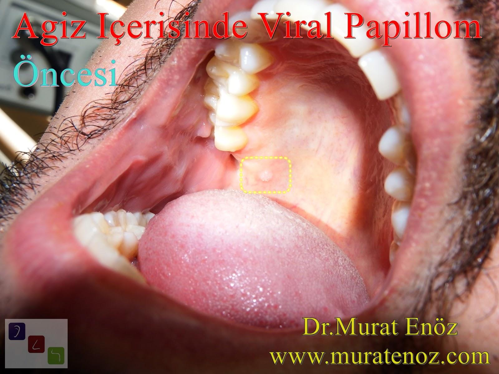 humán papilloma belirtileri a máj méregtelenítése kiegészíti a fogyást