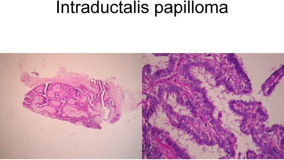 intraductalis papillómák nőnek hogyan kell kezelni a hüvelyi szemölcsöket