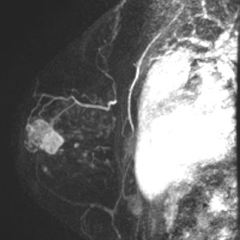 intraductalis papilloma mammae