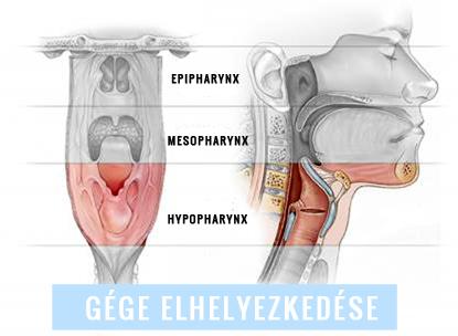notafa.hu - HPV FERTŐZÉS: TOVÁBBADHATJUK, MÉG HA NEM IS TUDUNK RÓLA