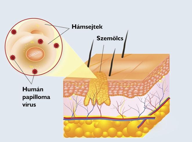 nyaki szemölcs biopszia