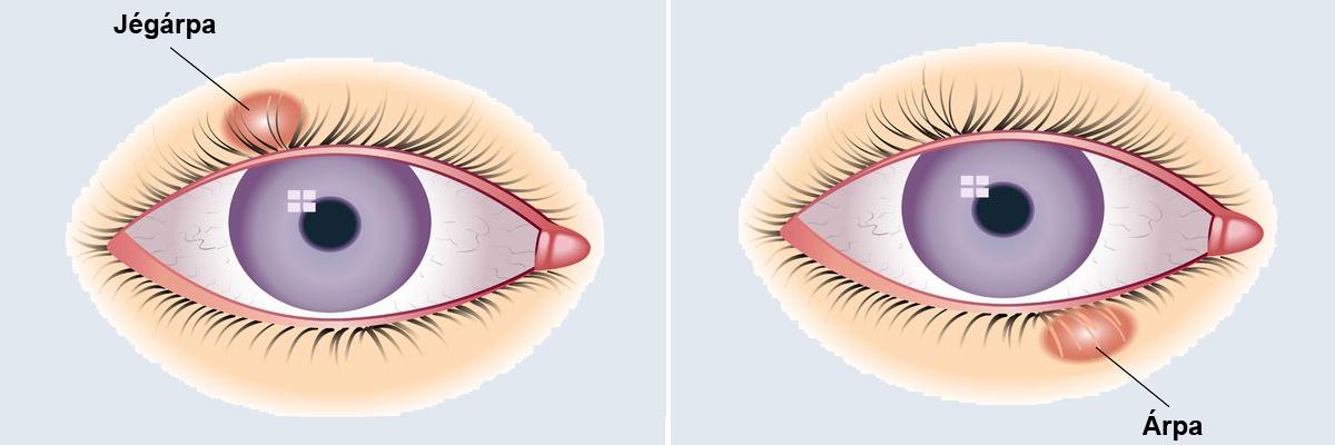 Papilloma a belső szemhéj szemében - Myoma