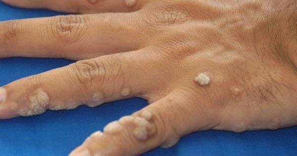 papilloma vírusellenes kezelés